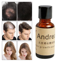 Load image into Gallery viewer, 20ml Huile Essentielle Essential Oils Andrea Hair Growth Loss Liquid Dense Fast Sunburst Grow Restoration Pilatory