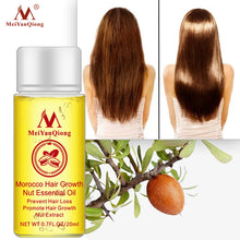 Load image into Gallery viewer, Fast Powerful Hair Growth Essence Hair Loss Products Essential Oil Liquid Treatment Preventing Hair Loss Hair Care Products 20ml