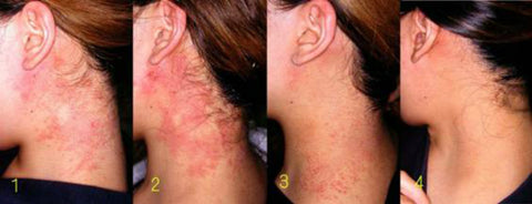 CURE PSORIASIS and Eczema