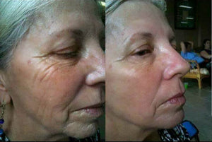 Anti Wrinkle Cream Beauty Device Face Care