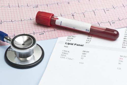 Understanding Your Blood Tests: Cholesterol