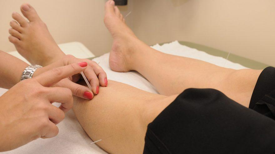Does Acupuncture Work? A List of Treatable Conditions