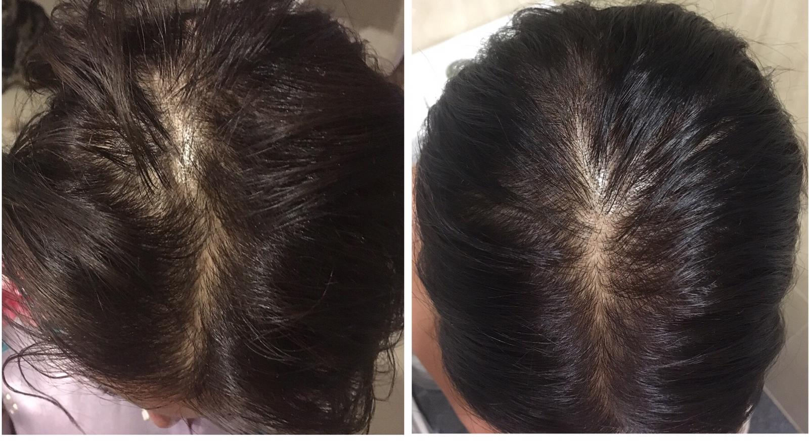 before after alopecia
