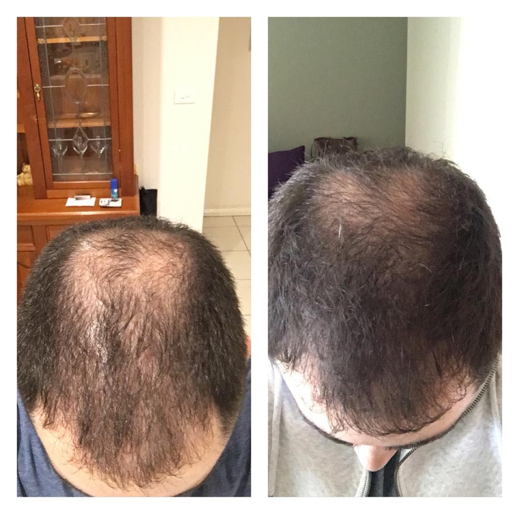 before after hair loss
