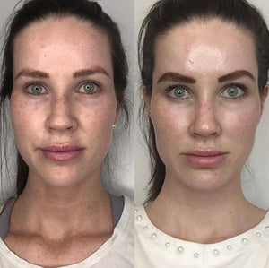 PRP FACIAL 4 TREATMENTS