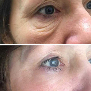 PLASMA ION EYE LID LIFT + EYE BAGS TREATMENT
