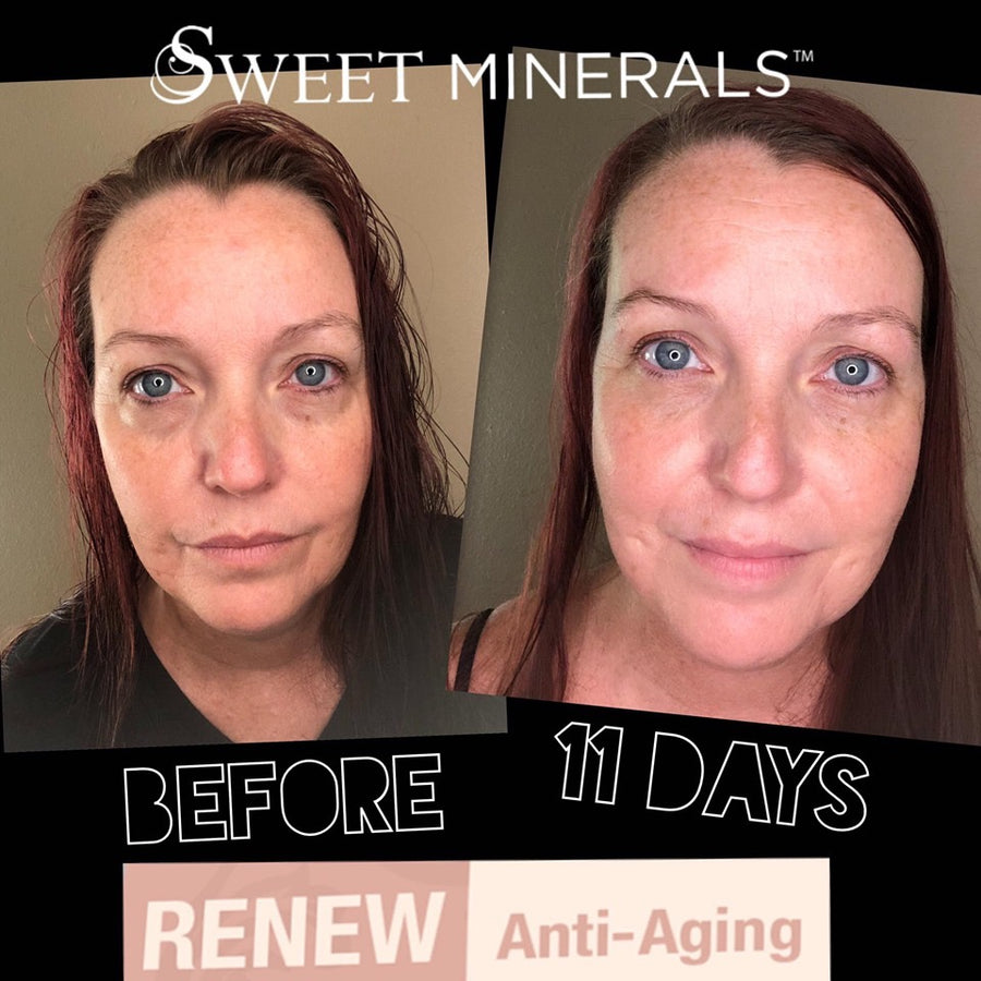 Renew Well-Aging Package