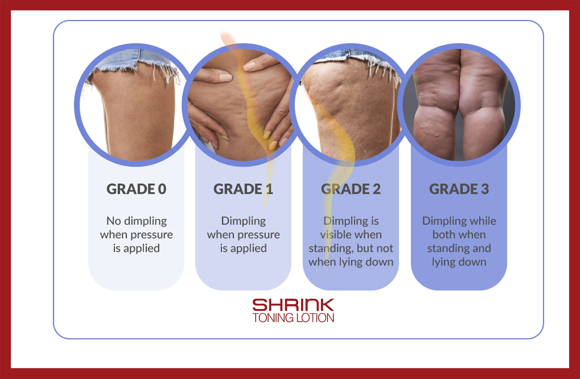 Shrink Toning Lotion - Heat Activated Skin Tightening Cream for Body!