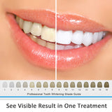 MitButy Teeth Whitening Kit with LED Light, 22% Carbamide Peroxide Gel (3x3ml) and Mouth Tray - Teeth Whitening at Home
