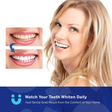 LUELLI Teeth Whitening Kit - 5X LED Light Tooth Whitener with 35% Carbamide Peroxide, Mouth Trays, Remineralizing Gel
