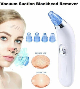Blackhead Remover Device- Acne Pimple Pore Cleaner Vacuum Suction Tool For Men And Women