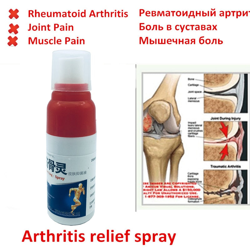 Pain Relieving Rheumatoid Arthritis Spray