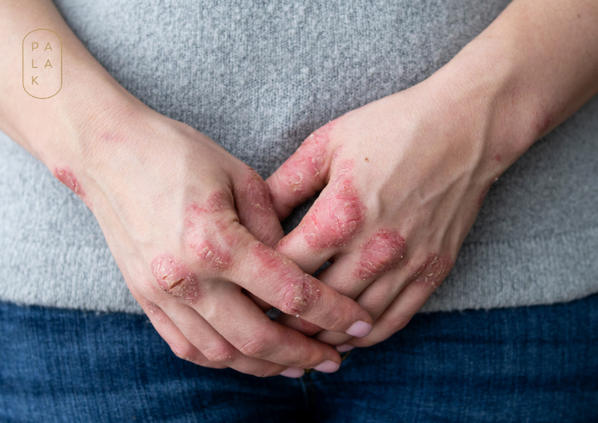 How to Get Instant Relief For Eczema Itch: A Permanent Solution