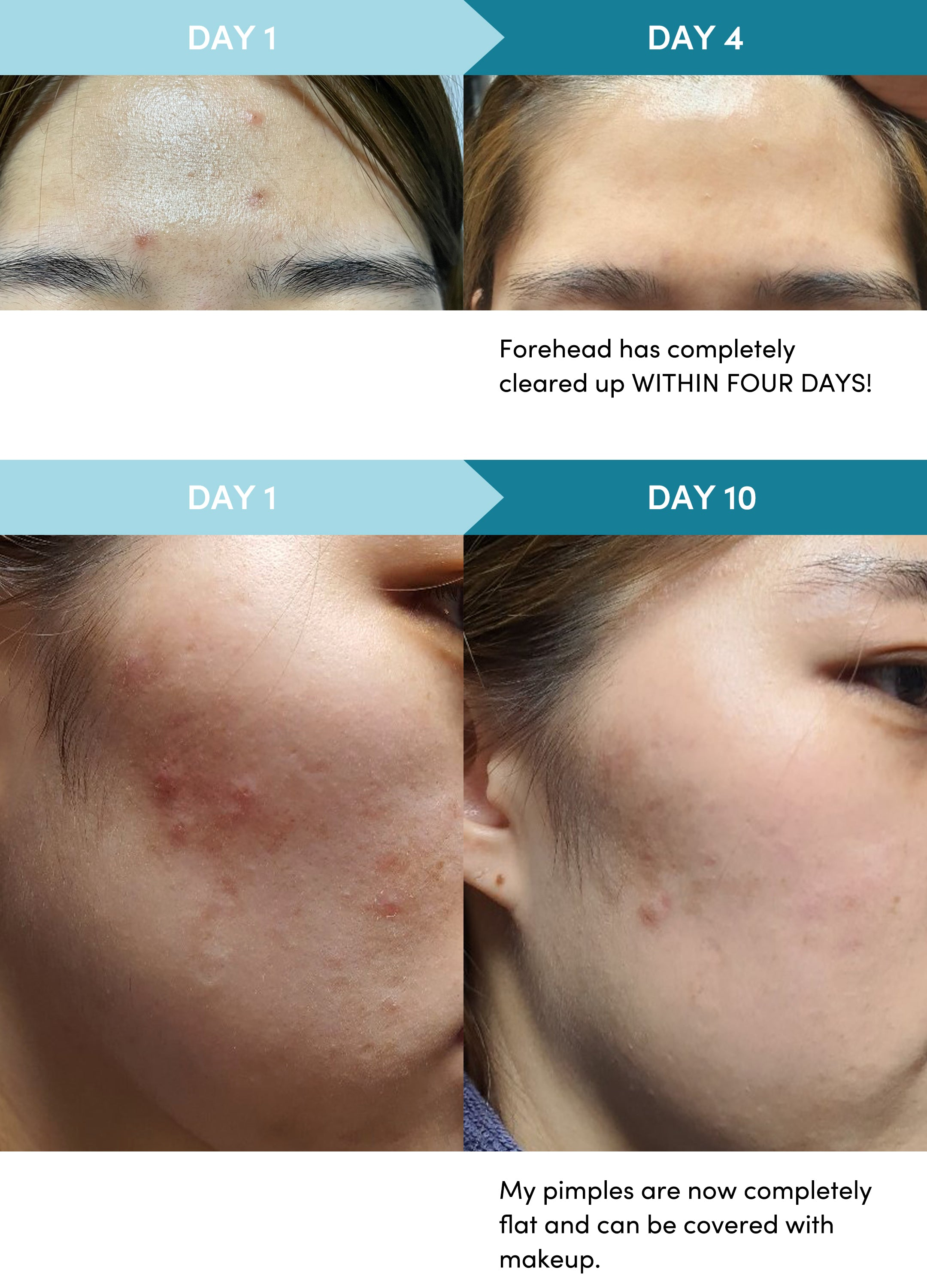 14 day acne soothing and skin hydrating results
