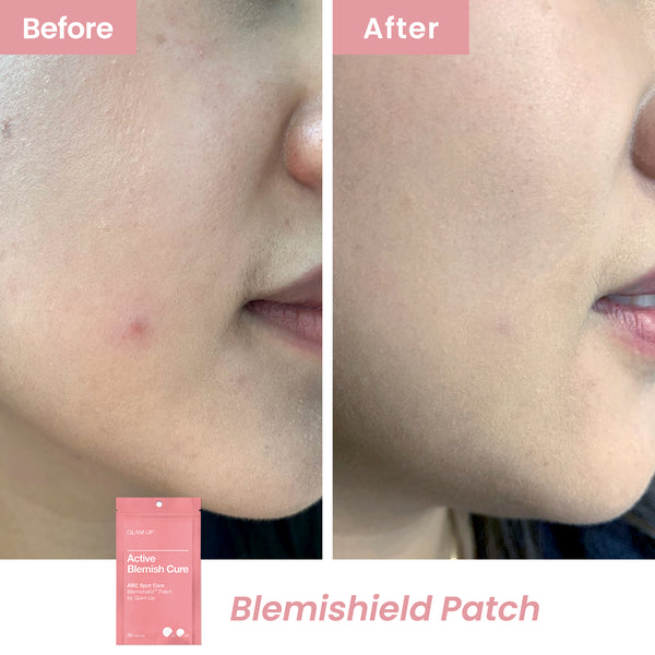 Top pick ingredient in Blemishield pimple patches to cure maskne for mask-free days.