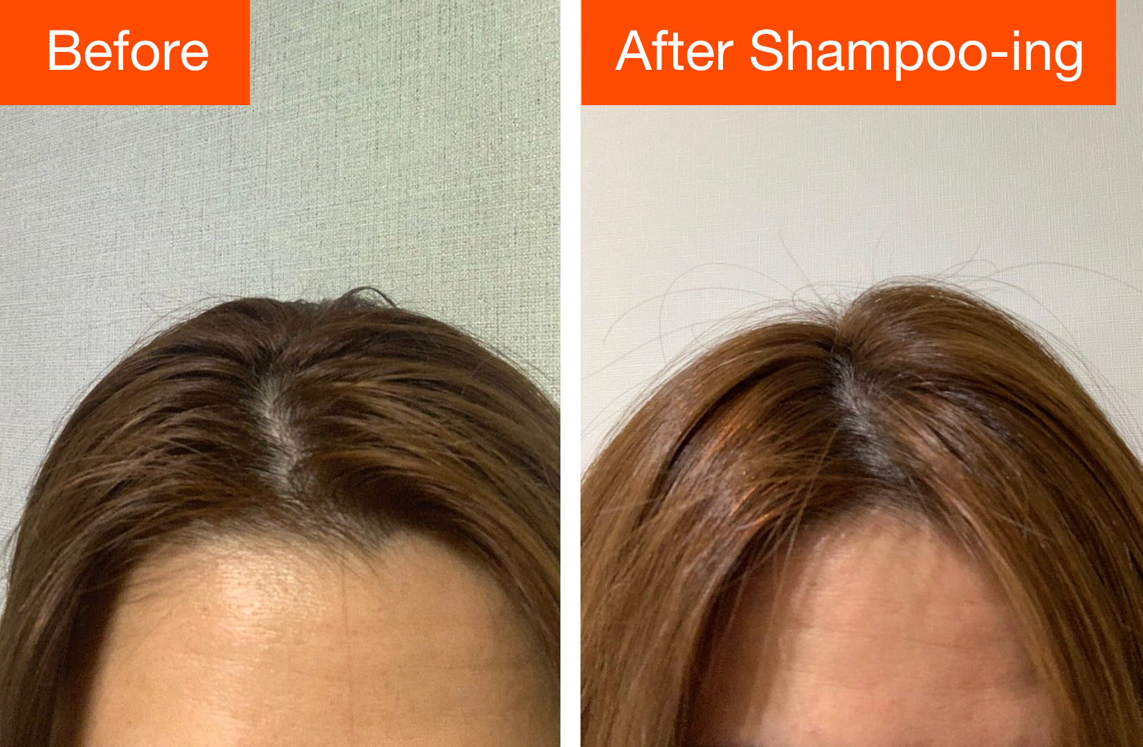 prevent oily hair with hair loss shampoo