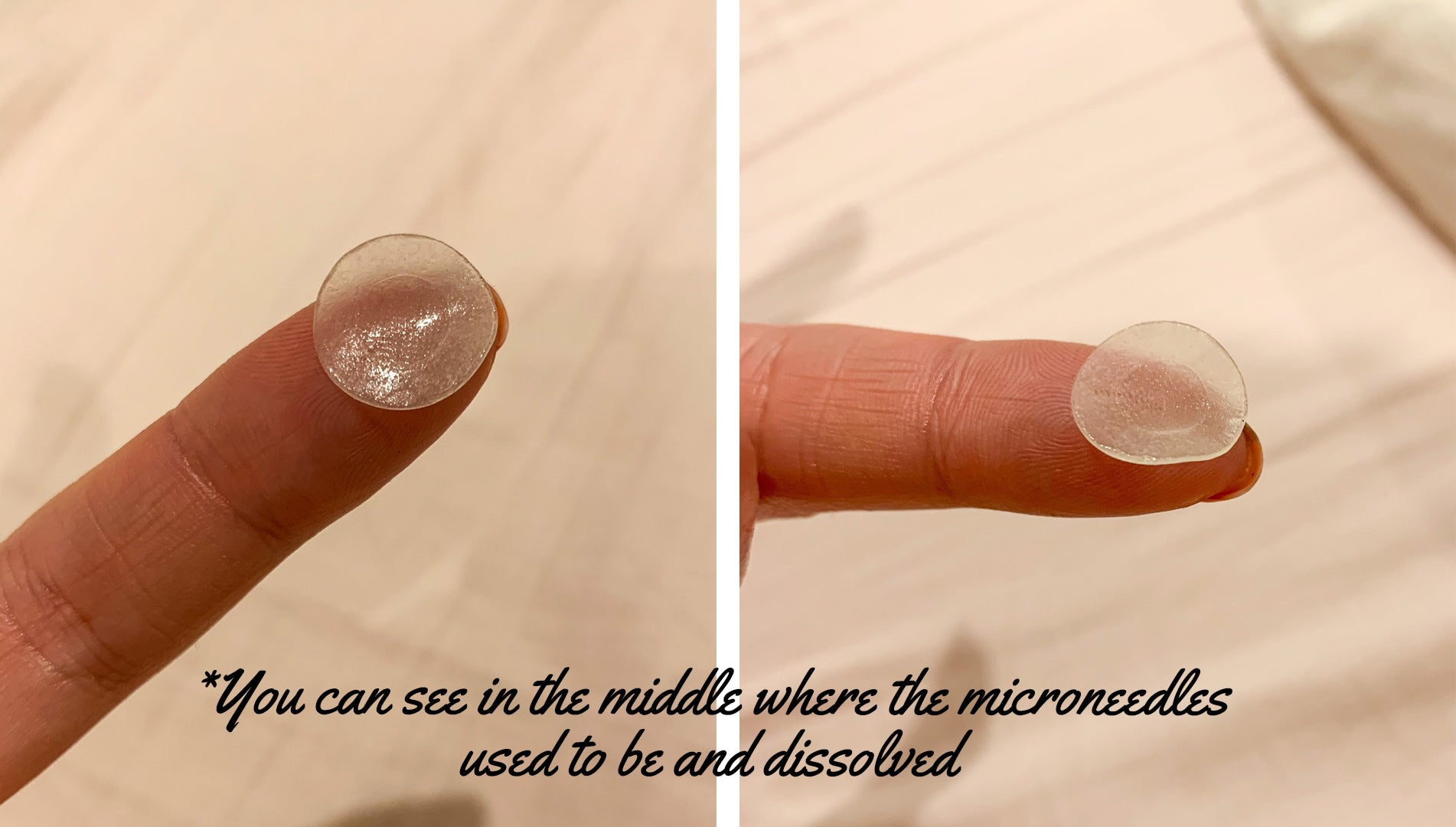 dissolved microneedles in the middle after the usage