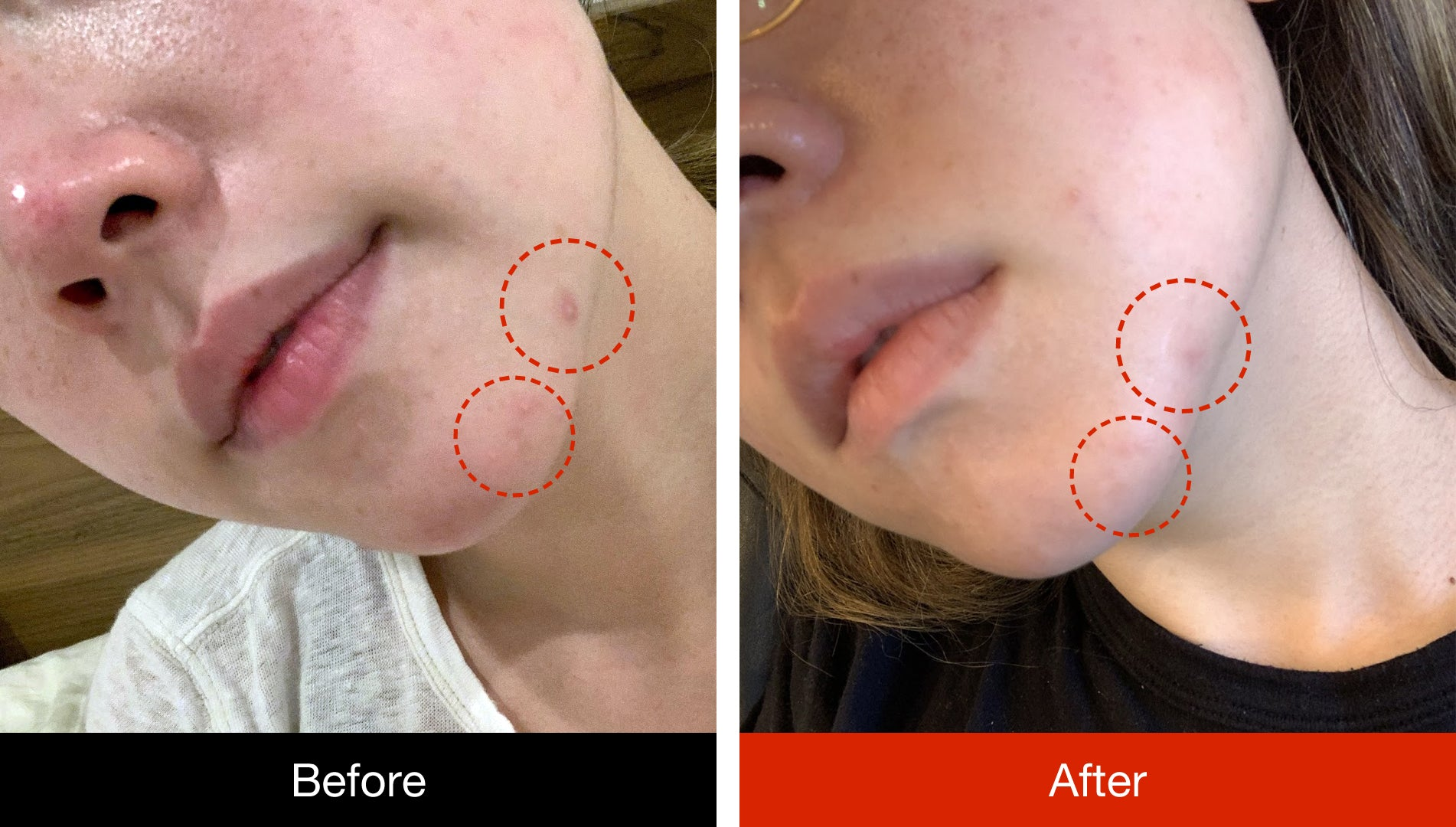 before and after using microneedle pimple patch