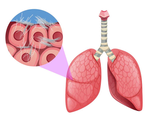 Asbestos that has settled in the respiratory tract