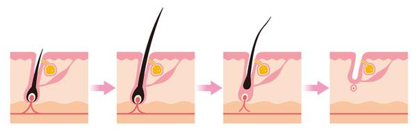 Scheme - Cycle of hair growth