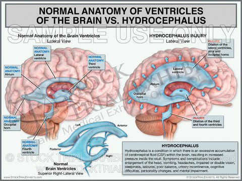 Normal Ventricles of the Brain vs Hydrocephalus Brain Injury