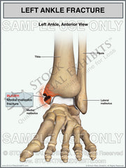 Medial Malleolus Ankle Fracture Medical Exhibit