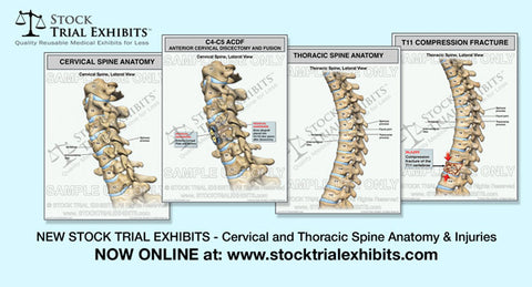 Stock Exhibits - Cervical Spine and Thoracic Spine Injuries