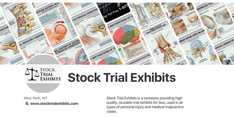 Cost Effective Medical Exhibits for NY Attorneys