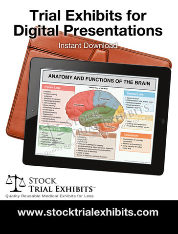 Medical Trial Exhibits for Digital Presentations in Personal Injury Cases from Stock Trial Exhibits