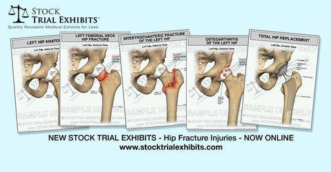 Stock Exhibits for Personal Injury Cases - Hip Fracture Injuries