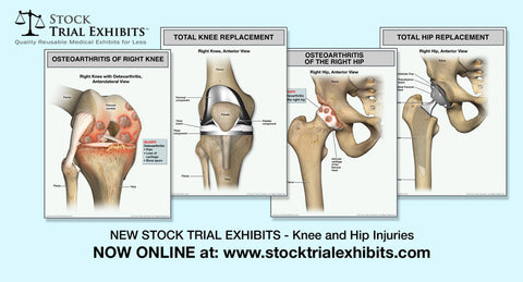 Knee and Hip Osteoarthritis and Total Knee and Hip Arthroplasty Medical Exhibits