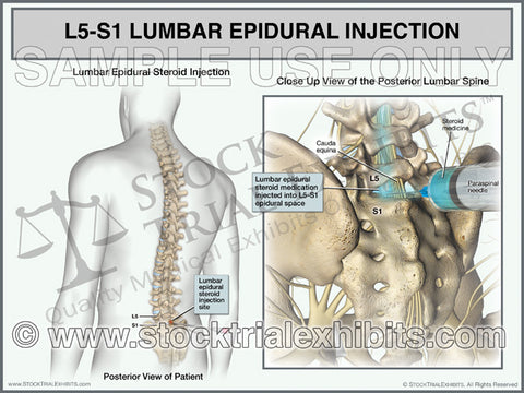 L5-S1 Epidural Injection of Lumbar Spine Medical Exhibits for Settlement and Trial Presentation of Personal Injury Cases