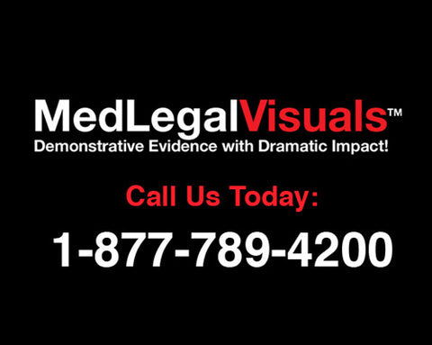 Medical Legal Exhibits Call 1-877-789-4200 only from MedLegalVisuals