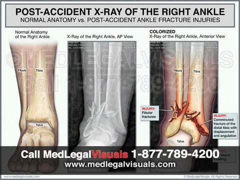 Medical illustration for presenting ankle fracture injuries