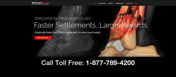 Medical Legal Visuals - Helps Trial Attorneys to Maximize Value of Injury Cases
