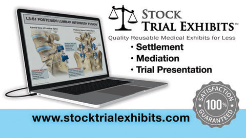 Stock Medical Legal Illustrations for Attorneys