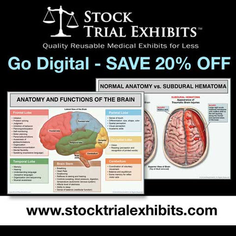 Digital Exhibits for Demand Packages and Mediation