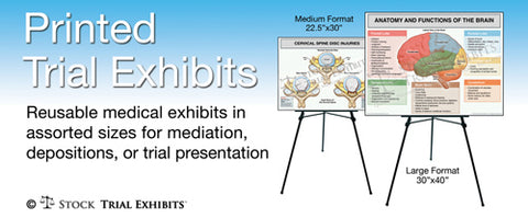 StockTrialExhibits offers cost effective medical exhibits with FREE Shipping on all printed trial exhibits for presentation of personal injury cases