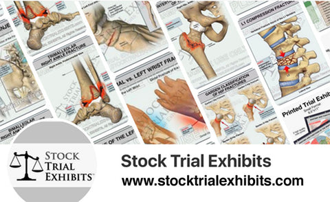 Anatomy Stock Images for Attorneys and Medical Professionals