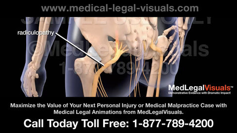 Medical Legal Animations - for personal injury and medical malpractice cases