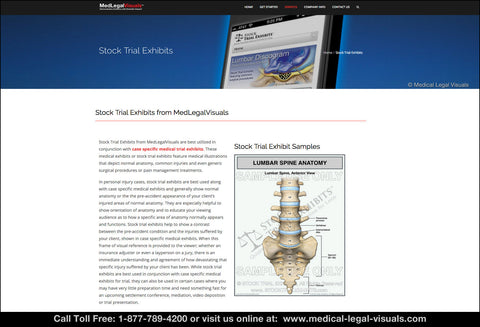 Stock Trial Exhibits from Medical Legal Visuals