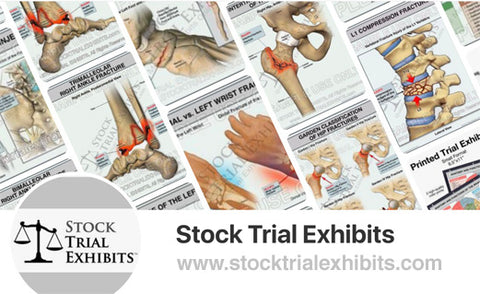 Stock Medical Illustrations for Personal Injury Settlement