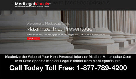 Trial Exhibits from Medical Legal Visuals