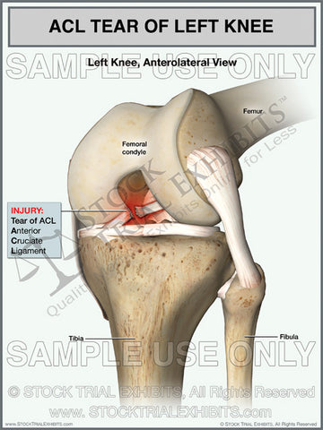 ACL Tear of the Left Knee