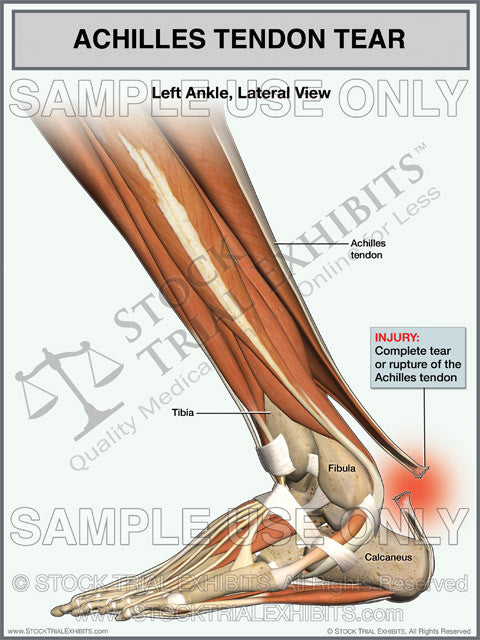 Printed Trial Exhibit Achilles Tendon Tear of the Left Ankle