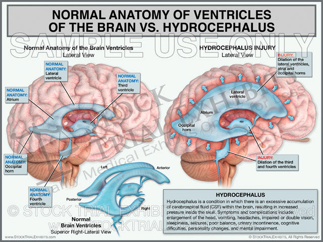 Brain Ventricles Anatomy vs. Hydrocephalus