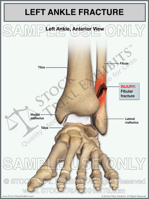 fibular fracture of the left ankle stock medical illustration