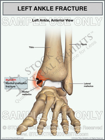 Ankle Fracture of the Left Medial Malleolus Fracture