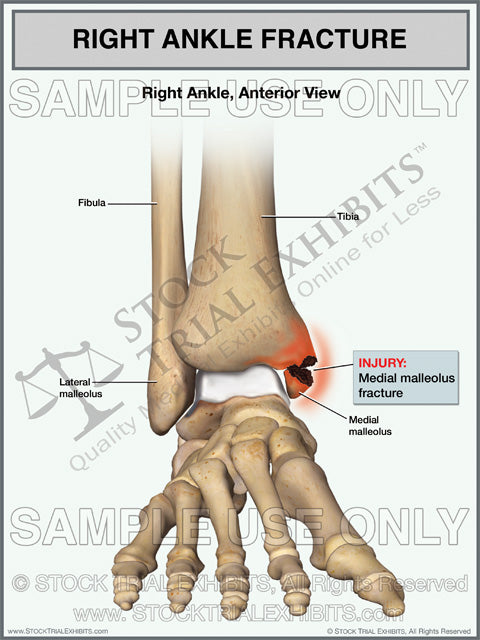 medial malleolus fracture of the right ankle stock medical illustration