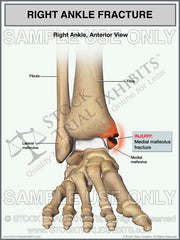 Presentation of Ankle Fracture Injuries for Settlement, Mediation or